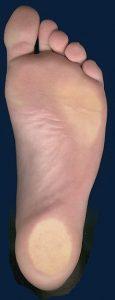 Mycose pied: quelle est la cause des mycoses du pied?